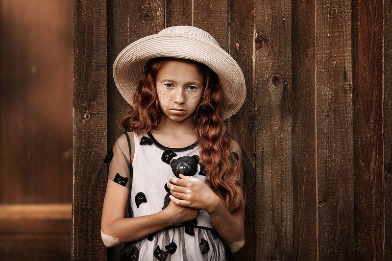 портрет, витилиго, модель, дети Дианаphoto preview